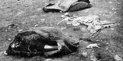 Рис. 33.3. Труп китайца, умершего от чумы во Владивостоке, подобран на Комаровской улице (крыса не чумная)